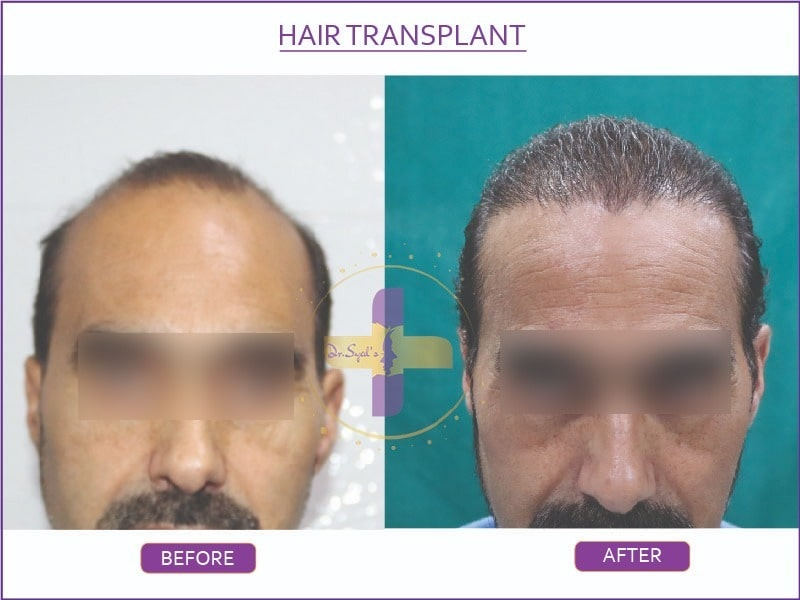 hair transplantation before after results