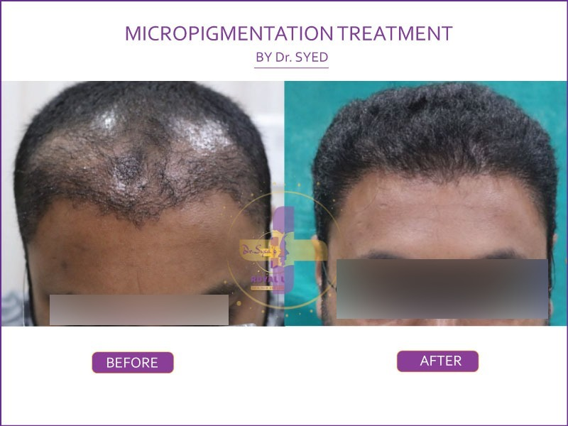 micropigmentation treatment