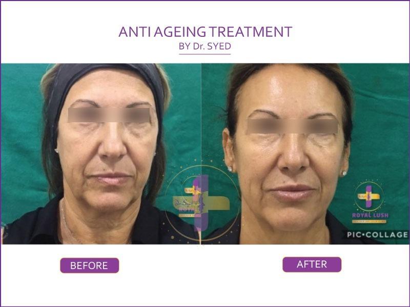 anti ageing treatment in south delhi