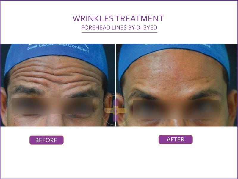 anti wrinkles treatment