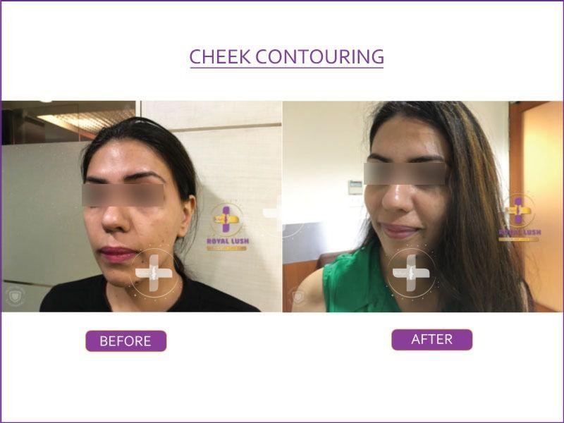cheek contouring