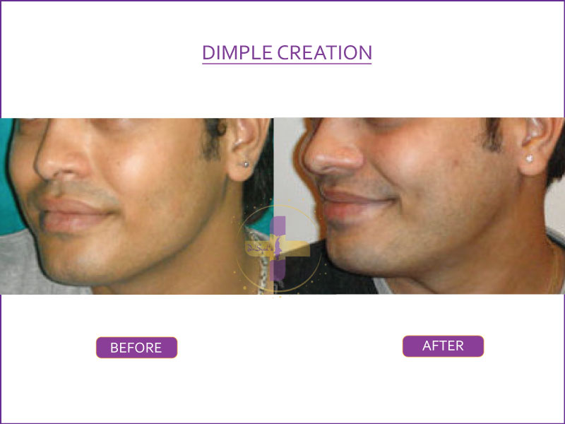 Dimple-Creation-1 (2)
