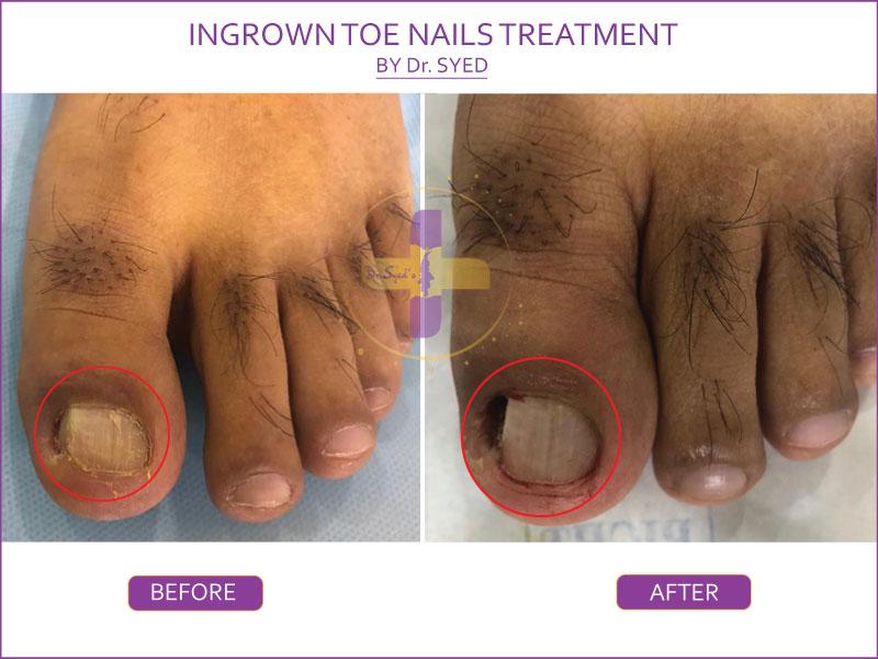 Ingrown+toenail+surgery+by+Pulse+Podiatry+wembley+podiatrist+perth+podiatrist (2)