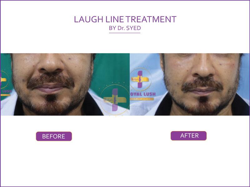 laugh line treatment