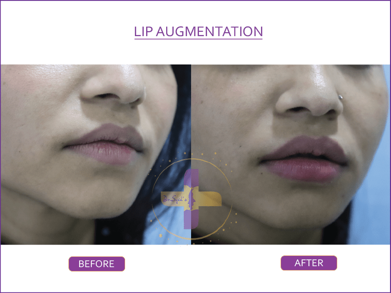 lip augmentation in Saket