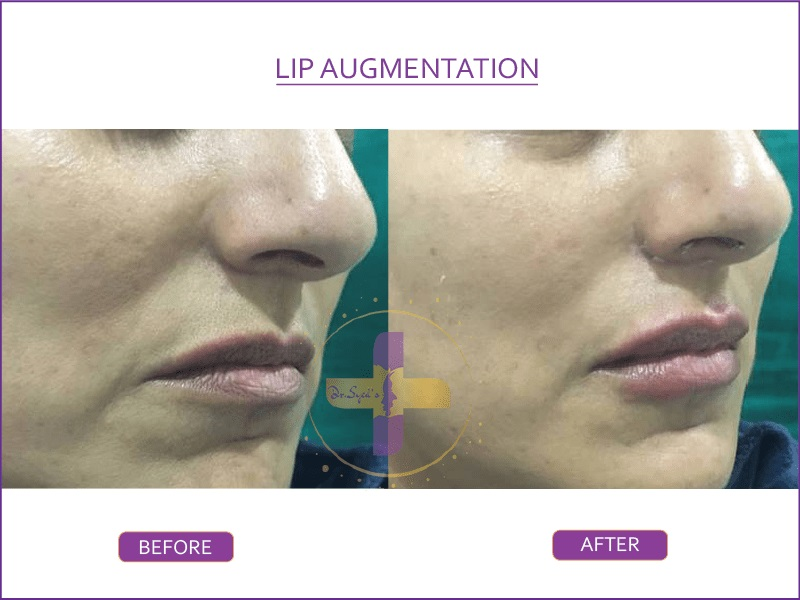 lip augmentation by dr syed