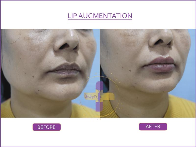 lip augmentation in Saket