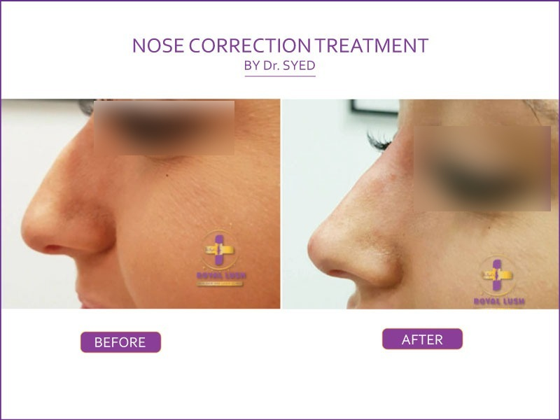 nose correction by dr syed