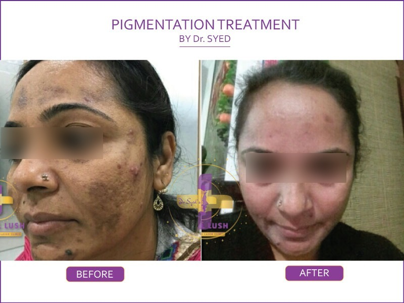 Pigmentation treatment in saket