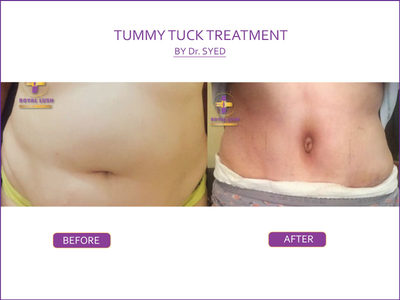 tummy tuck treatment