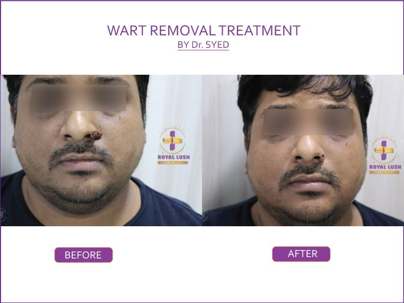 keloids removal treatment in south delhi